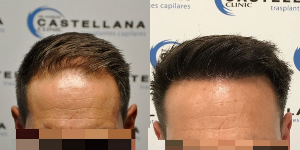 dr. Andrade 2327 grafts