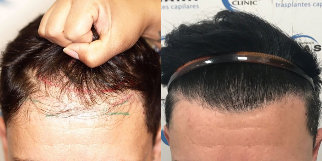 Dr Andrade 2540 grafts