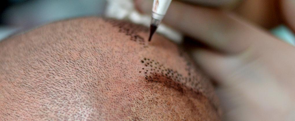 tecnica tricopigmentazione
