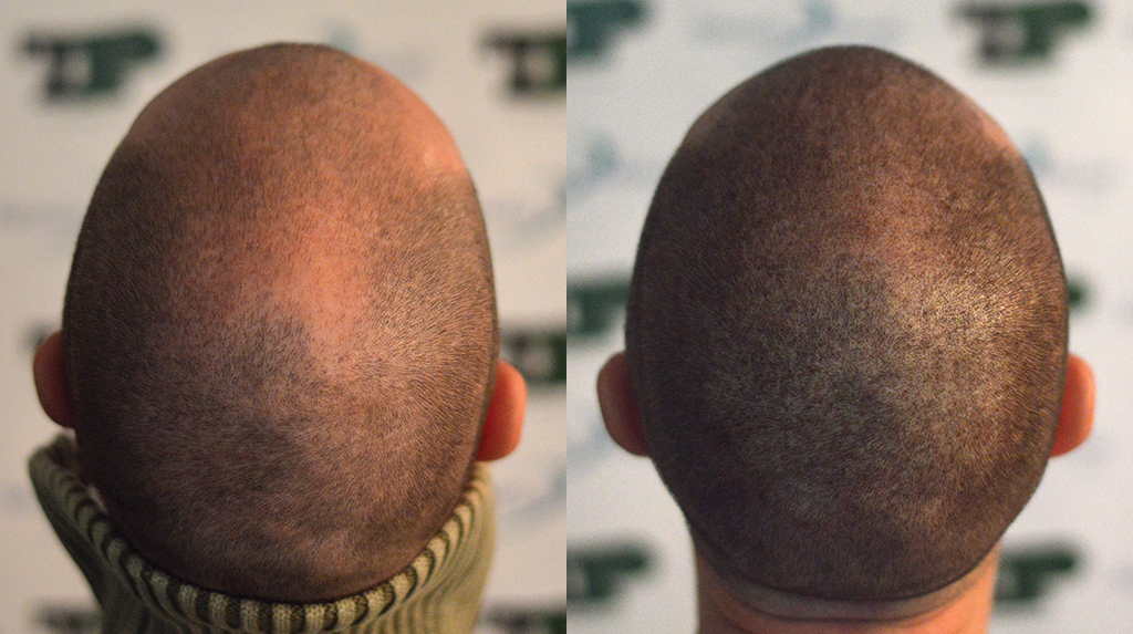 tricopigmentazione cuoio capelluto