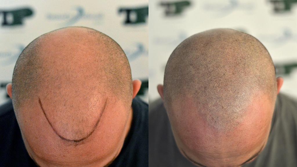 prepost tricopigmentazione