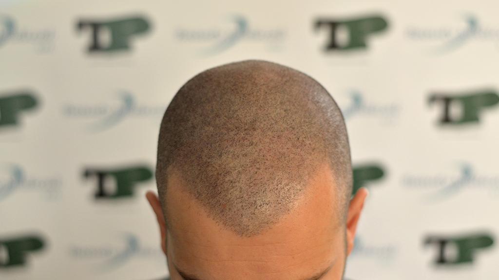 tricopigmentazione del cuoio capelluto frontale