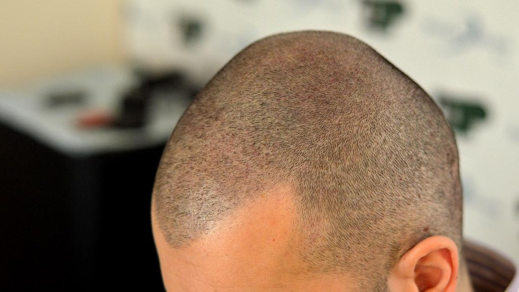 tricopigmentazione di paul tempia sinistra
