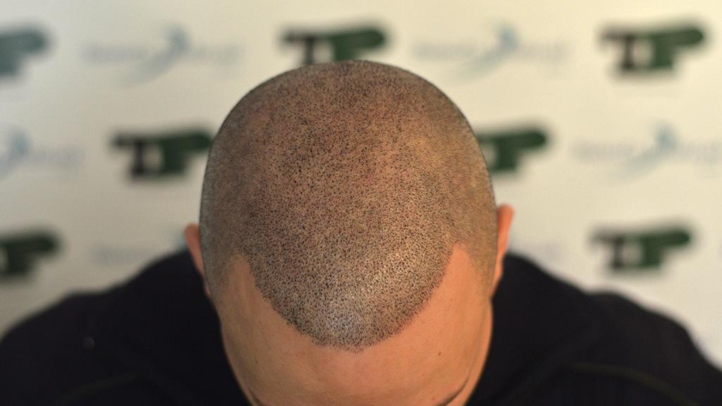 tricopigmentazione-cicatrici-FUE