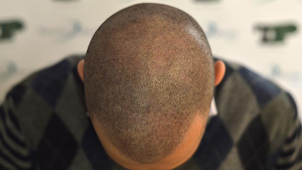 tricopigmentazione testa superiore