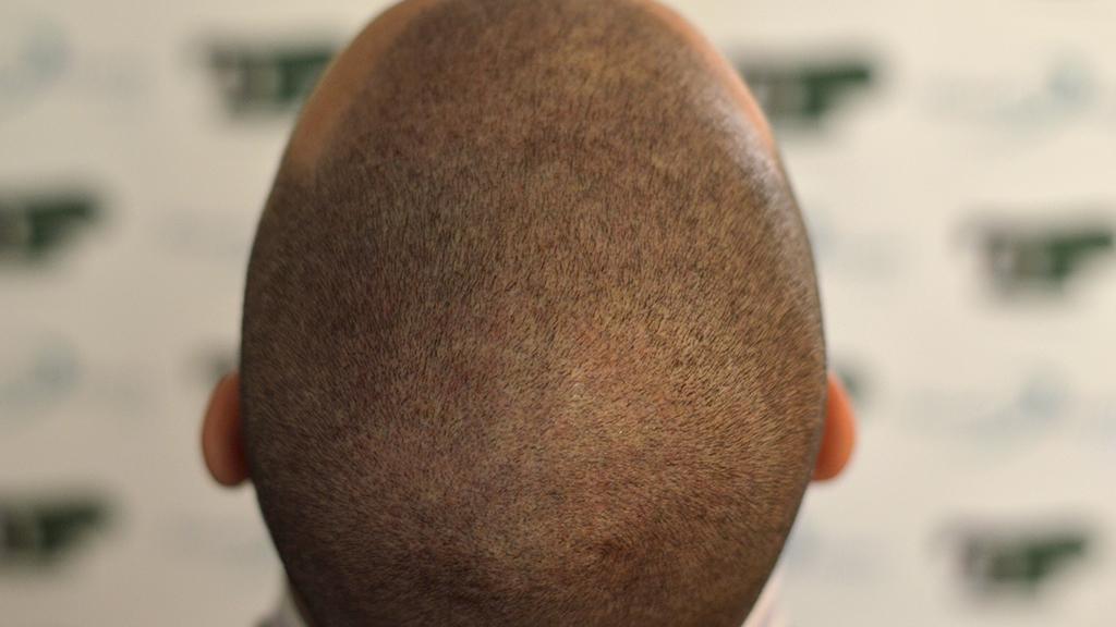 tricopigmentazione del cuoio capelluto chierica