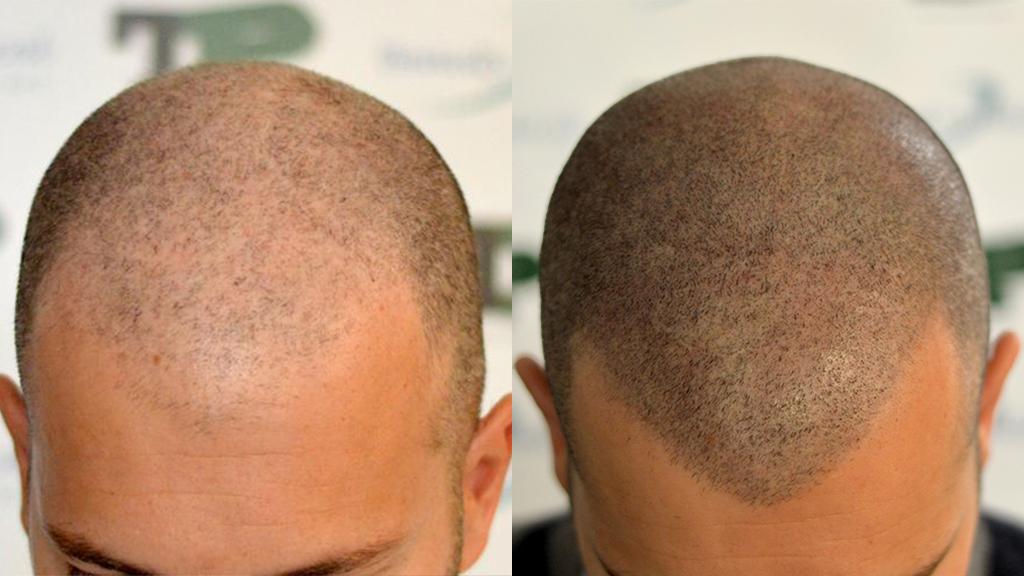 tricopigmentazione del cuoio capelluto pre e post