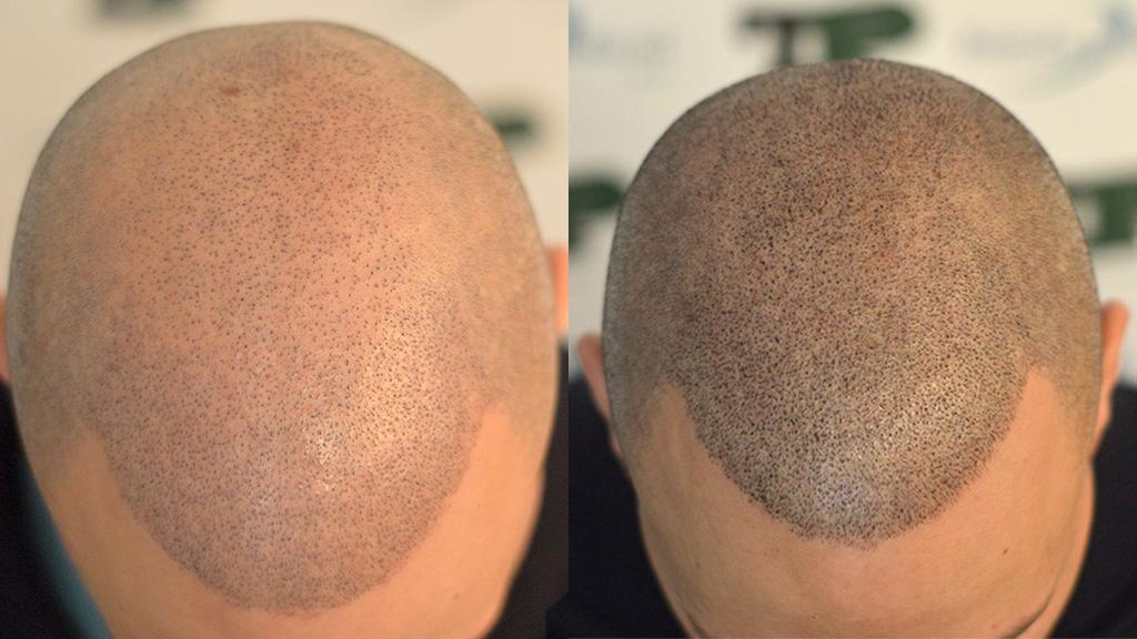tricopigmentazione-cicatrici-FUE3