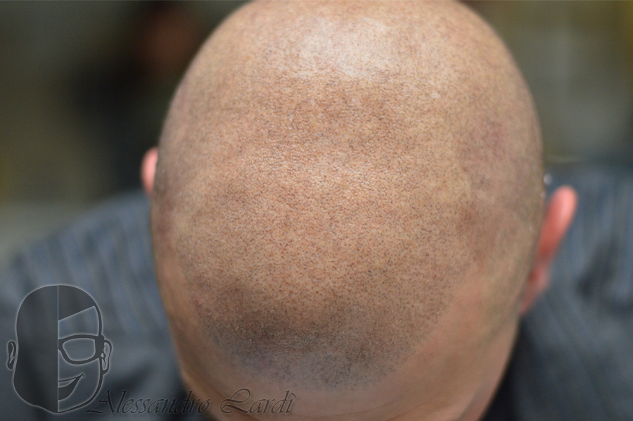tricopigmentazione rasato