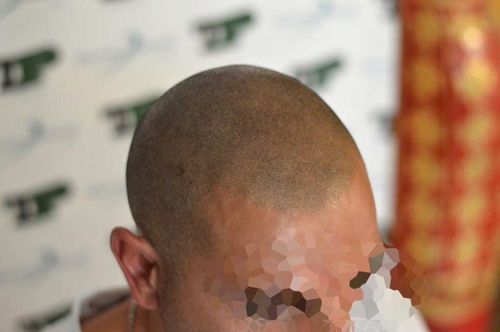 tricopigmentazione-reversibile-post