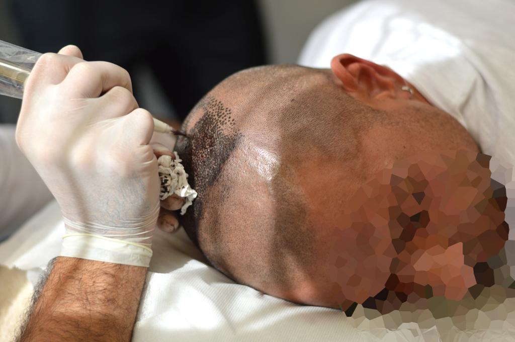 tricopigmentazione-reversibile-durante