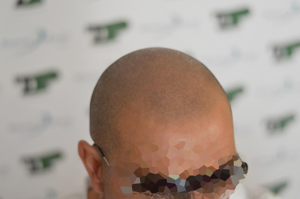 tricopigmentazione-reversibile-pre