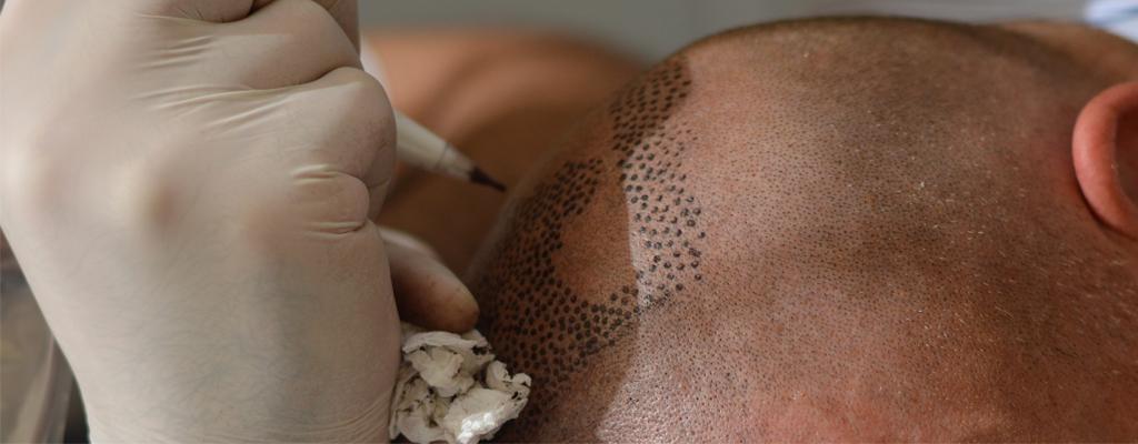 aghi da tricopigmentazione e scalpo rasato
