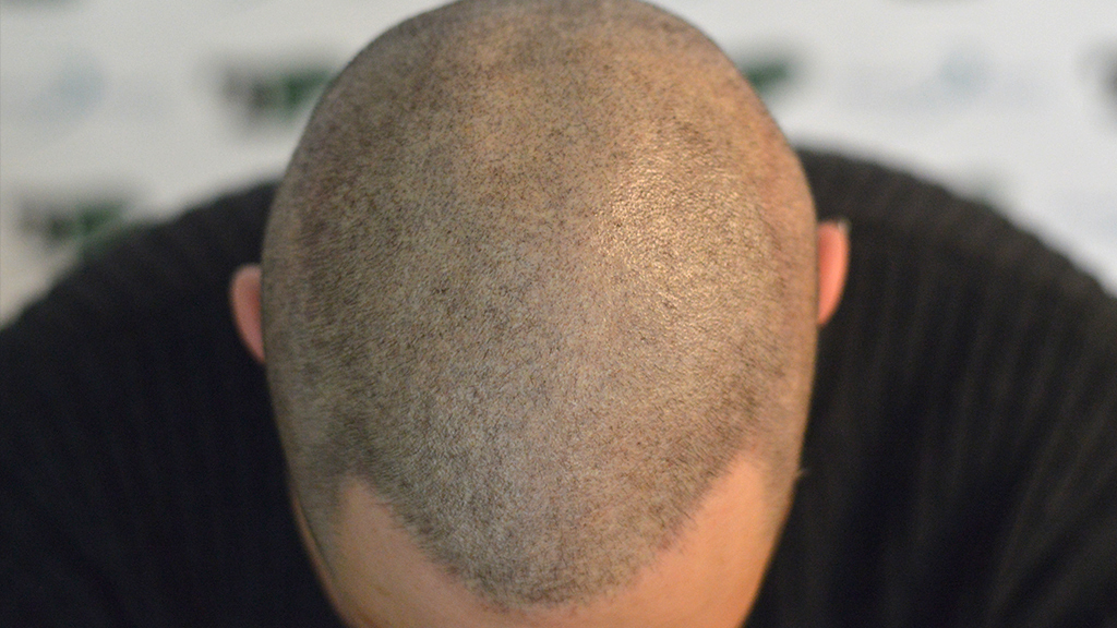tricopigmentazione POST mantenimento