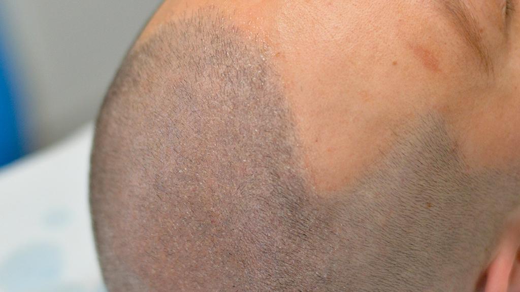 Costi tricopigmentazione – Ma quanto mi costi?