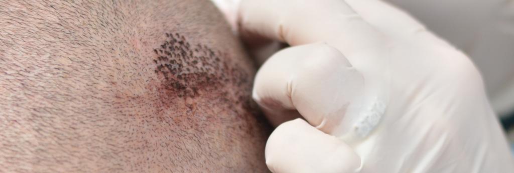 aghi tricopigmentazione