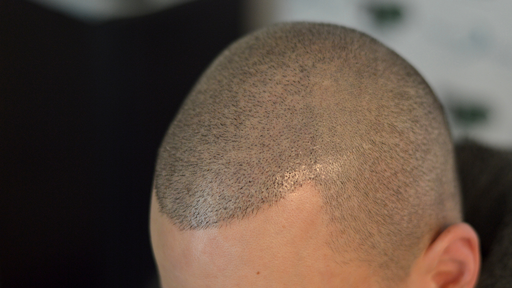tricopigmentazione-cicatrice