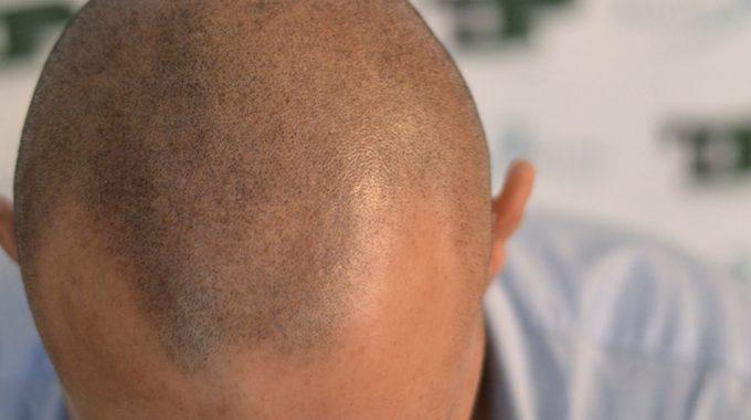 Cheratina e colore dei capelli
