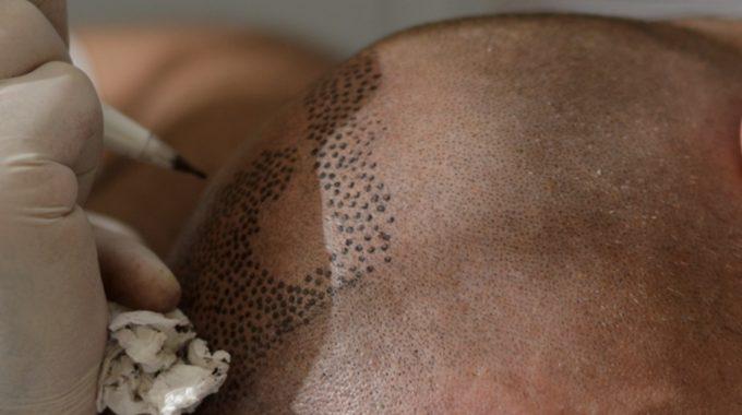 Tricopigmentation needles