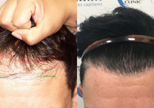 Dr. Andrade 2540 grafts