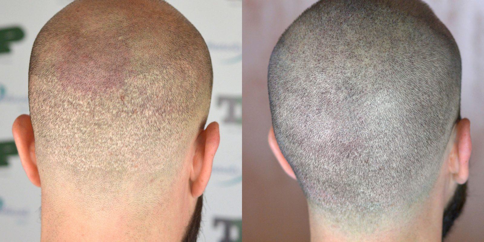Caso 49 - Tricopigmentazione dopo trapianto di capelli FUE