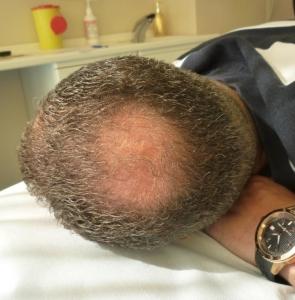 Tricopigmentazione Vertice Chierica. Operatrice: Milena Lardì