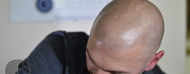 Tricopigmentazione rasato di GM