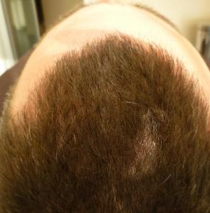 Tricopigmentazione capelli media lunghezza. Operatrice: Milena Lardì