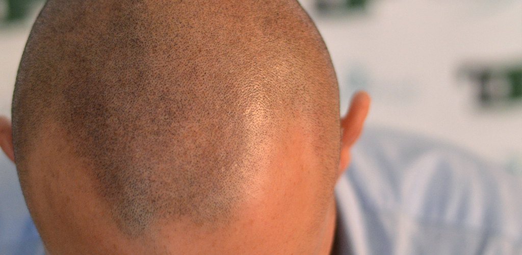 Keratin, Why does shaved hair always have the same color?