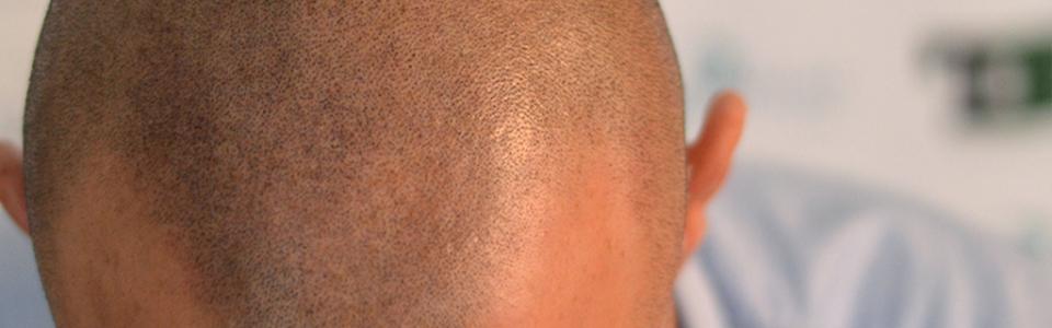 La Cheratina, Perché i capelli rasati hanno tutti la stessa base di colore.