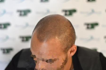 Tricopigmentation post hair system.
