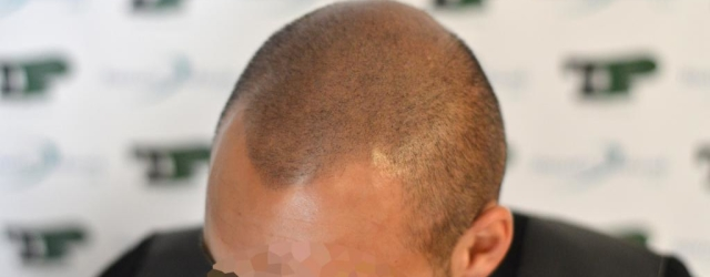 Tricopigmentation post hair system.