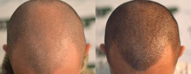 Density Effect – Short Hair, Technician: Milena Lardì