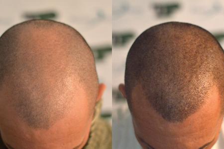 Tricopigmentazione – Alopecia, Tecnico: Milena Lardì