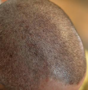 Tricopigmentazione capelli corti 2°Sd, Operatrice: Milena Lardì