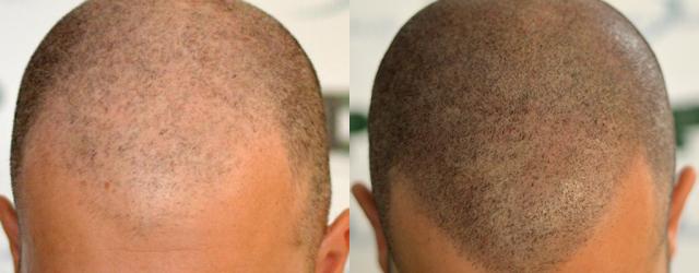 Paul's Tricopigmentation. Technician: Milena Lardì