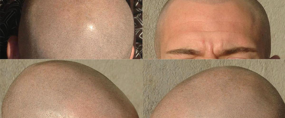 Temporary Tricopigmentation