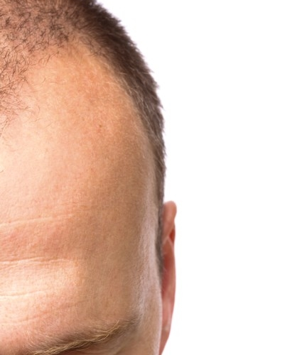 S.I.Tri Article: Everything about androgenetic alopecia