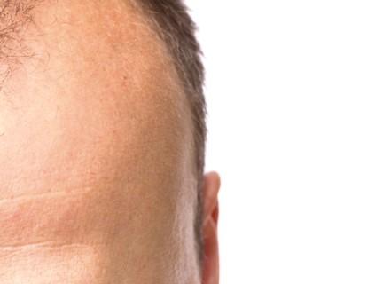 Articolo S.i.tri: Tutto sull'alopecia androgenetica